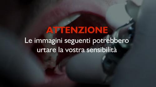 attenzione-dente